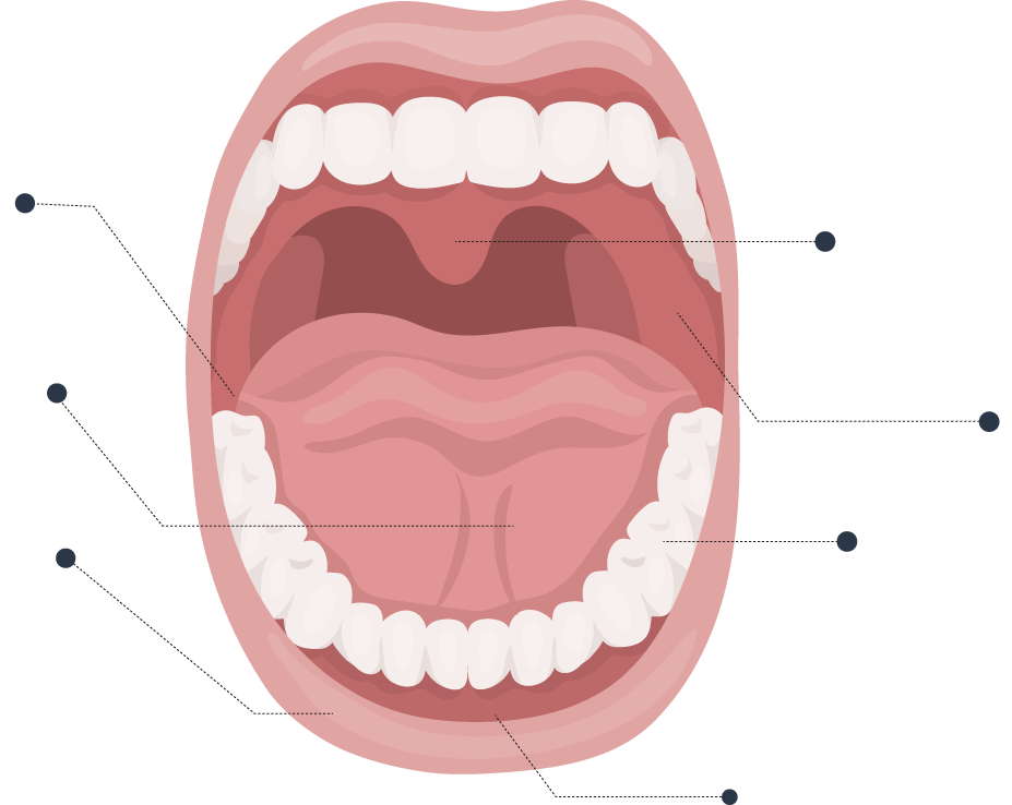 Types-of-Mouth-Ulcers