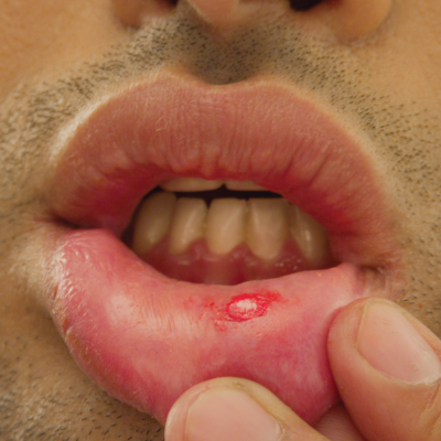 mouth-ulcer-image